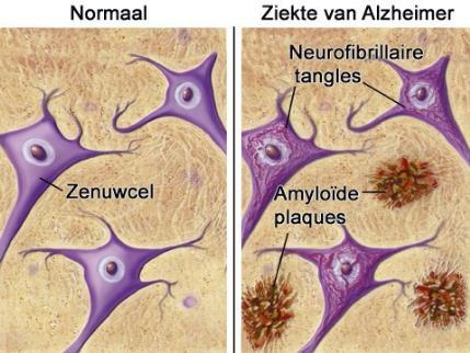 FAKE – 'Coronavirus' kan leiden tot hersenschade